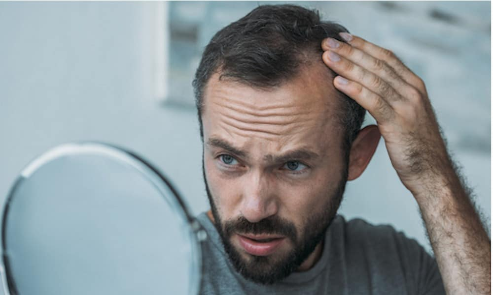 Could RU-58841 Be the Answer for Your Hair Loss?